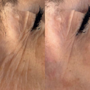 SMARTSkin_before_after_shot_01